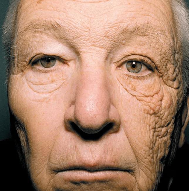 cu si fara protectie UV